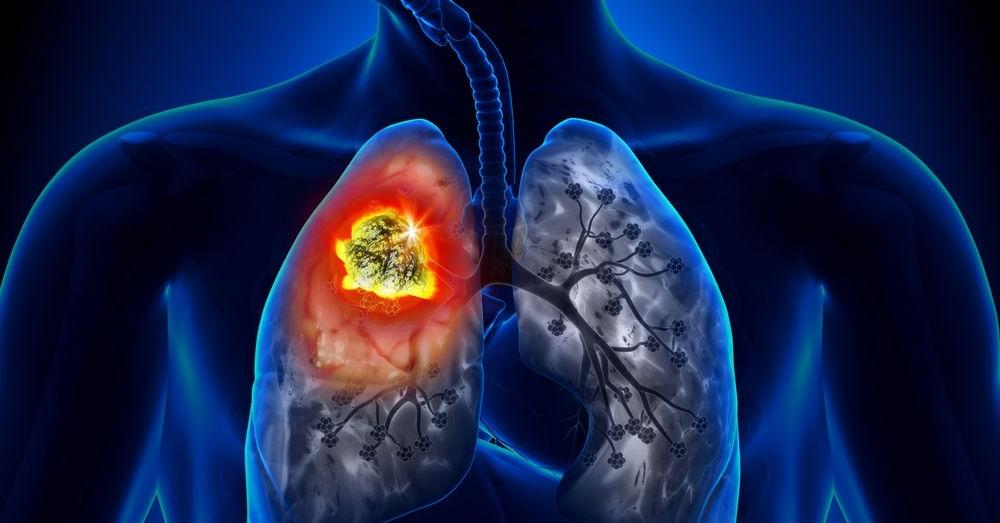 Afecciones respiratorias frecuentes.